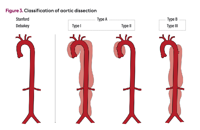 Nursing patients with acute aortic dissection in emergency departments