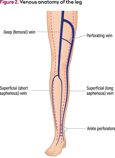 Assessment And Management Of Older People With Venous Leg Ulcers