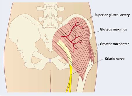Using the ventrogluteal site for intramuscular injection