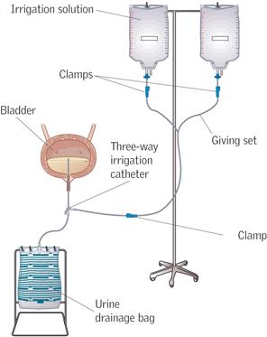 bladder irrigation system