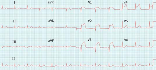 Primary angioplasty for acute ST-elevation myocardial infarction