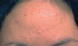 Acne vulgaris: clinical features, assessment and treatment