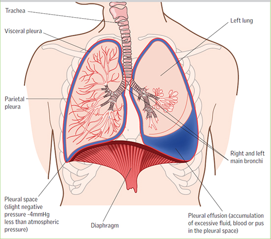 Diagnosis and management of patients with pleural effusions