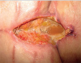 Prevention of surgical site infection