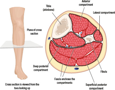 Acute Limb Compartment Syndrome In The Lower Leg Following Trauma
