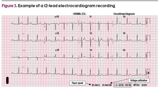 Example of a 12-lead electrocardiogram recording