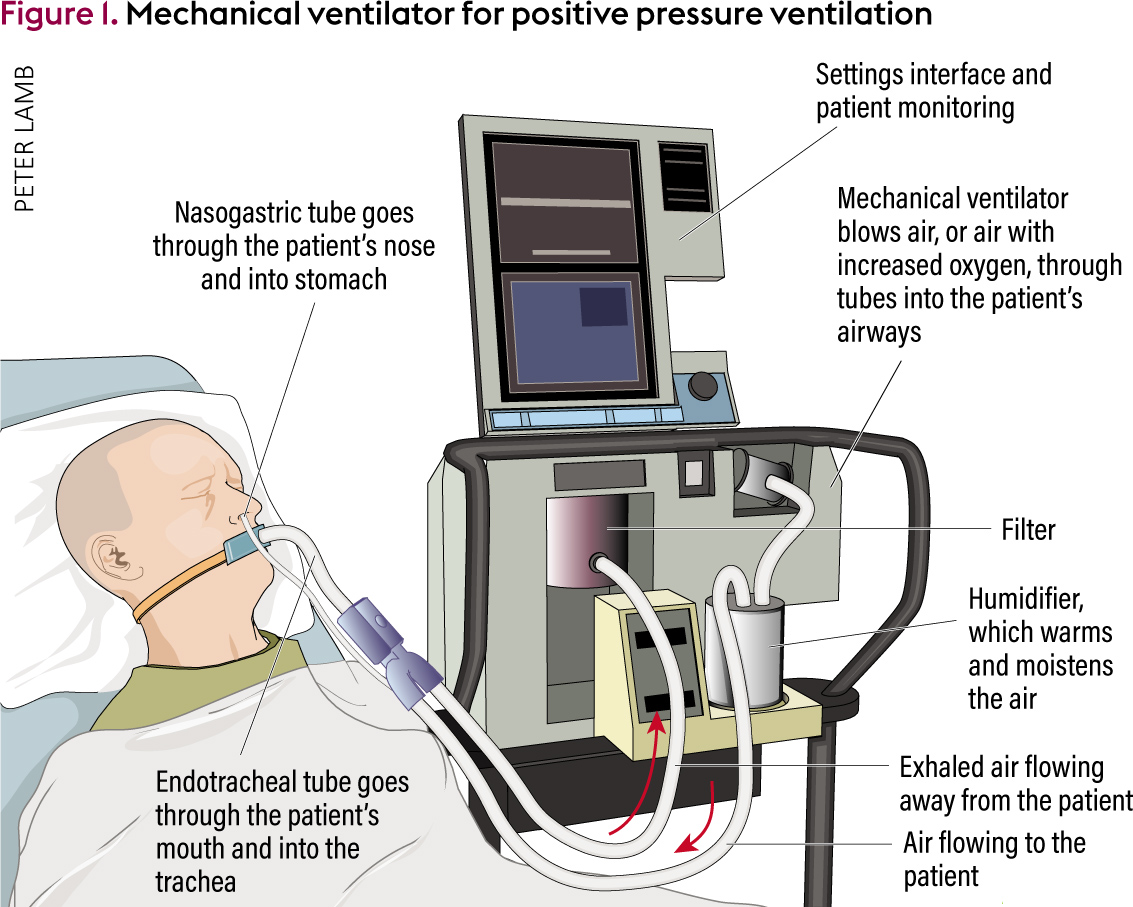An Overview Of Mechanical Ventilation In The Intensive Care Unit Exhaling Diagram Breathing Or Ventilator For Positive Pressure