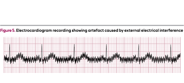 How to record a 12-lead electrocardiogram
