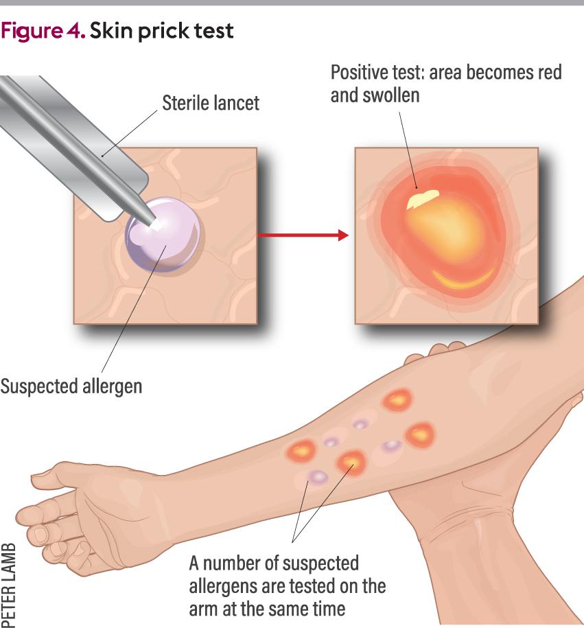 ibuprofen penicillin allergie