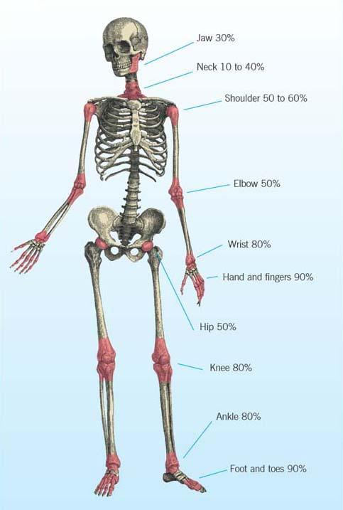 Improving Long Term Outcomes For Rheumatoid Arthritis Evidence Based Care