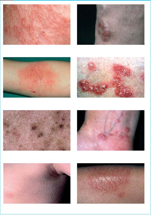Dry Skin Conditions An Evidence Based Focus On Natural Oatmeal Emollients